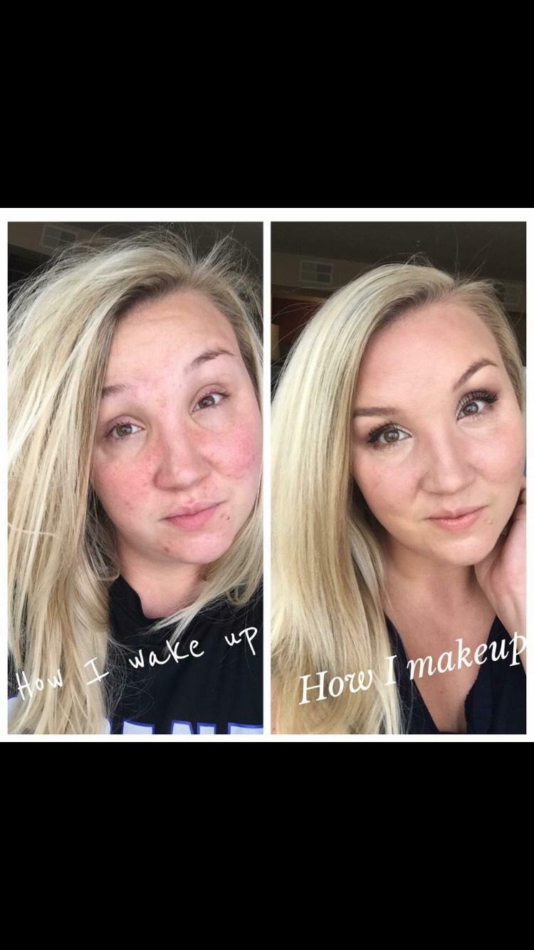 Covers even acne prone skin 💗