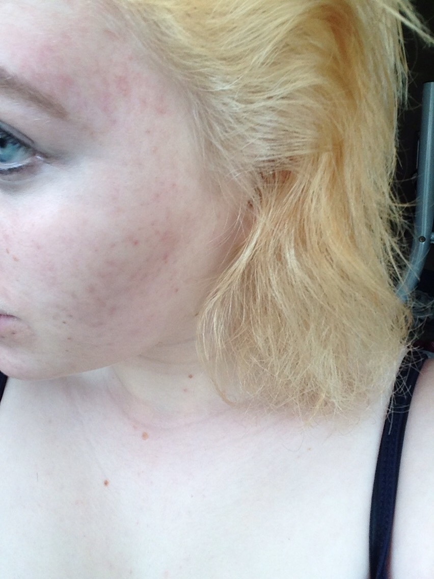 This is after the bleaching, I again put conditioner on my hair for a couple of minutes to stop my hair from feeling so dry