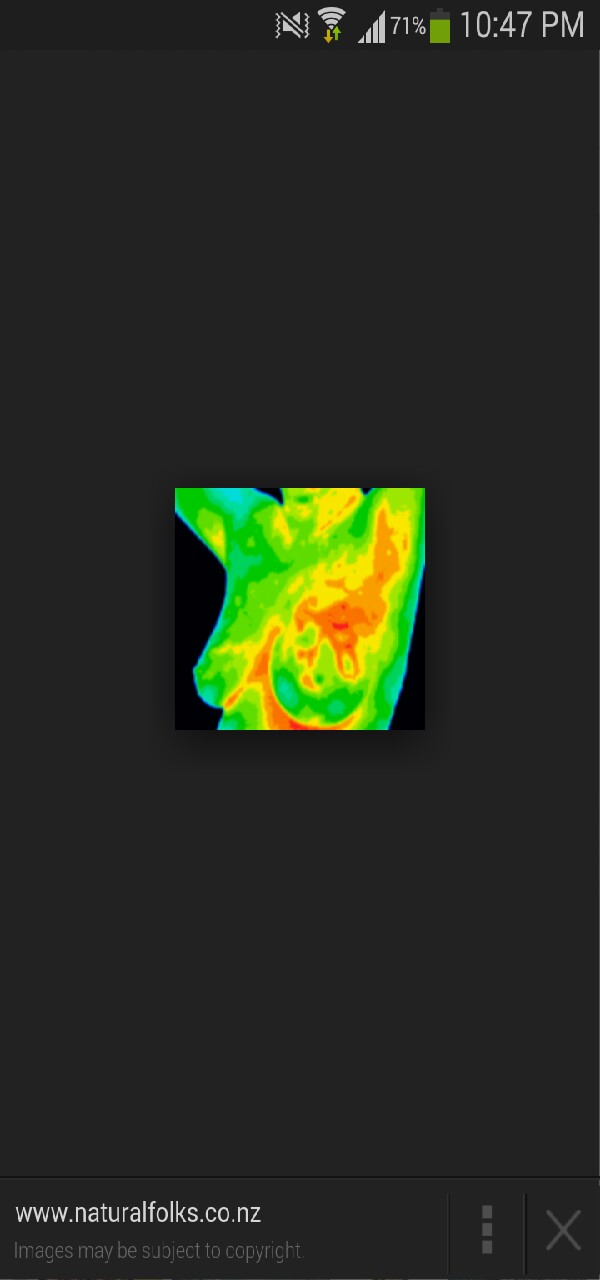 thermography is a thermal imaging of your breasts. no squishing, no radiation. and it picks up on cancer!