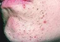 If you keep getting blackheads it's because your skin is usually oily and you have large pores. And it's properly something your going to have to fight all your life.