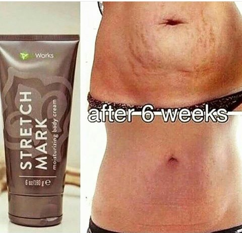 It Works Stretch Mark Cream By Constantine Newhouse Musely