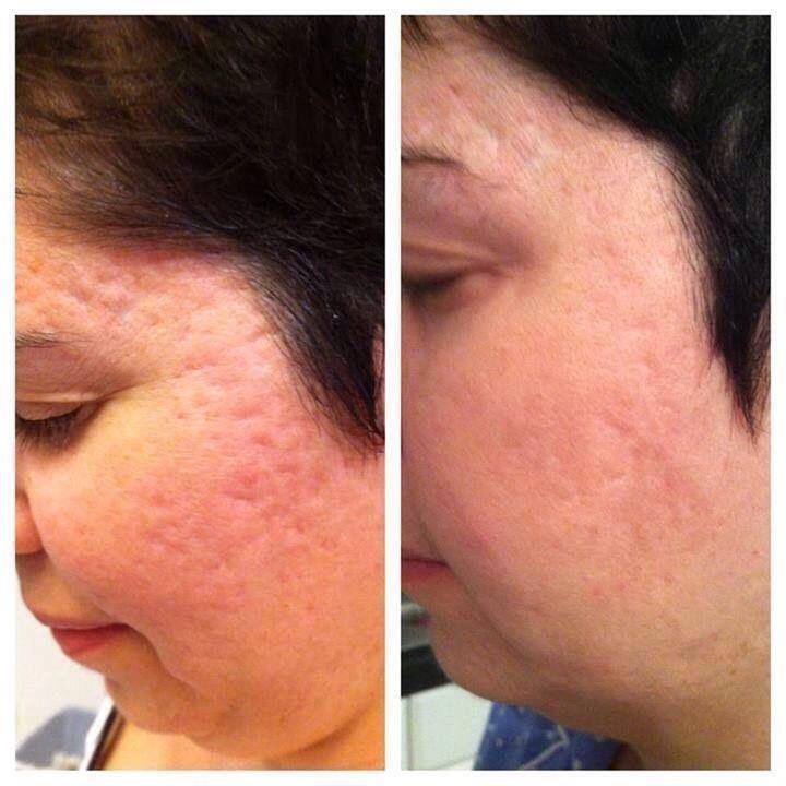 does accutane treat back acne