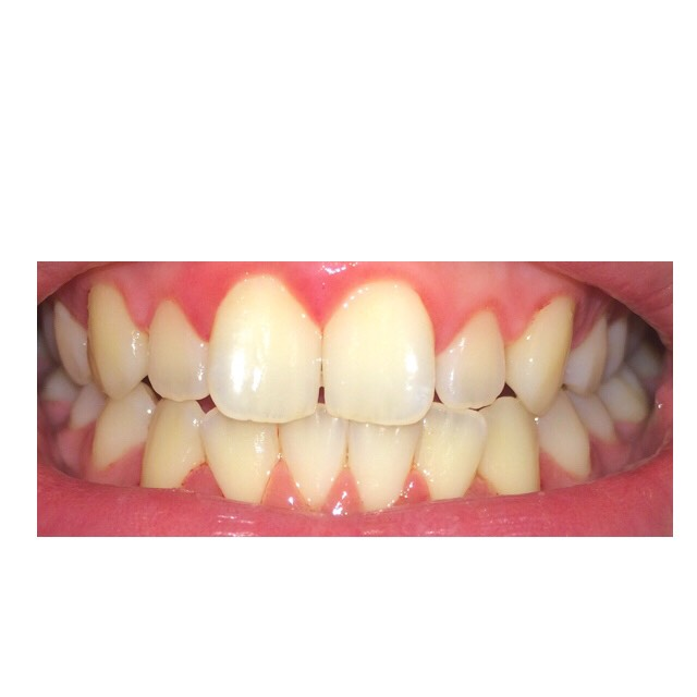* MY TEETH 💦after 👀💁  ( wash it twice with the paste for a whiter effect <yeah they are still a bit yellow 😒😷> )