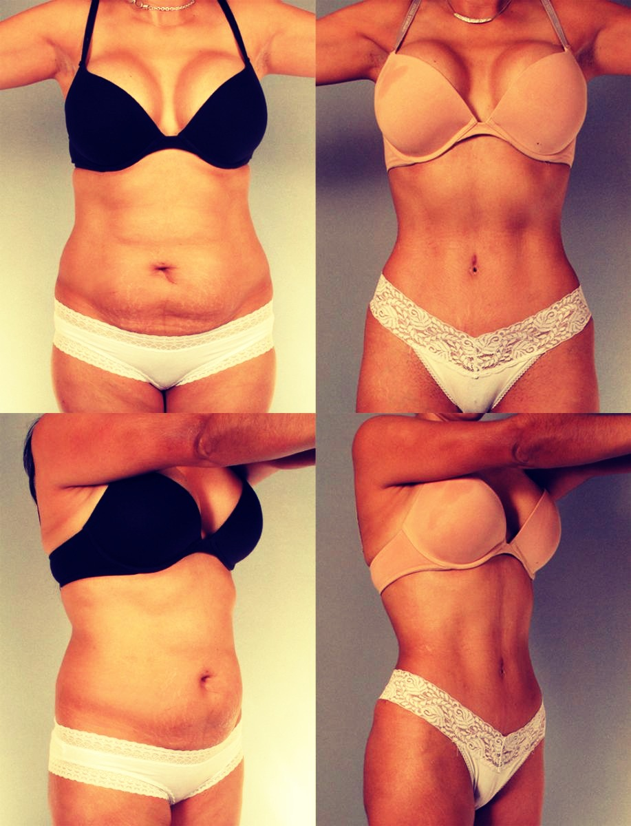 How To Lose Inches Of Your Tummy Overnight! *DIY Body Wrap For Cheap