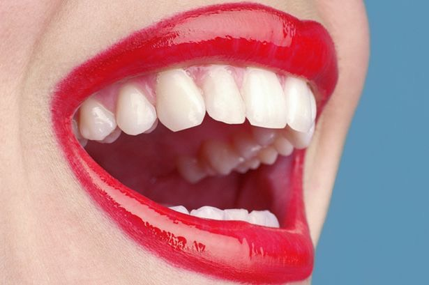 Then repeat the process for about 1 to two weeks then you should have amazing white teeth like the picture shown