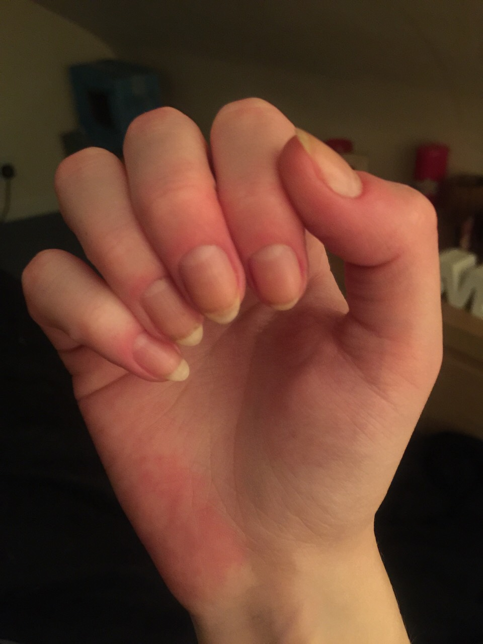 These are my real nails after a month of using this tip!😱🙌🏻😝💅🏻👌🏻