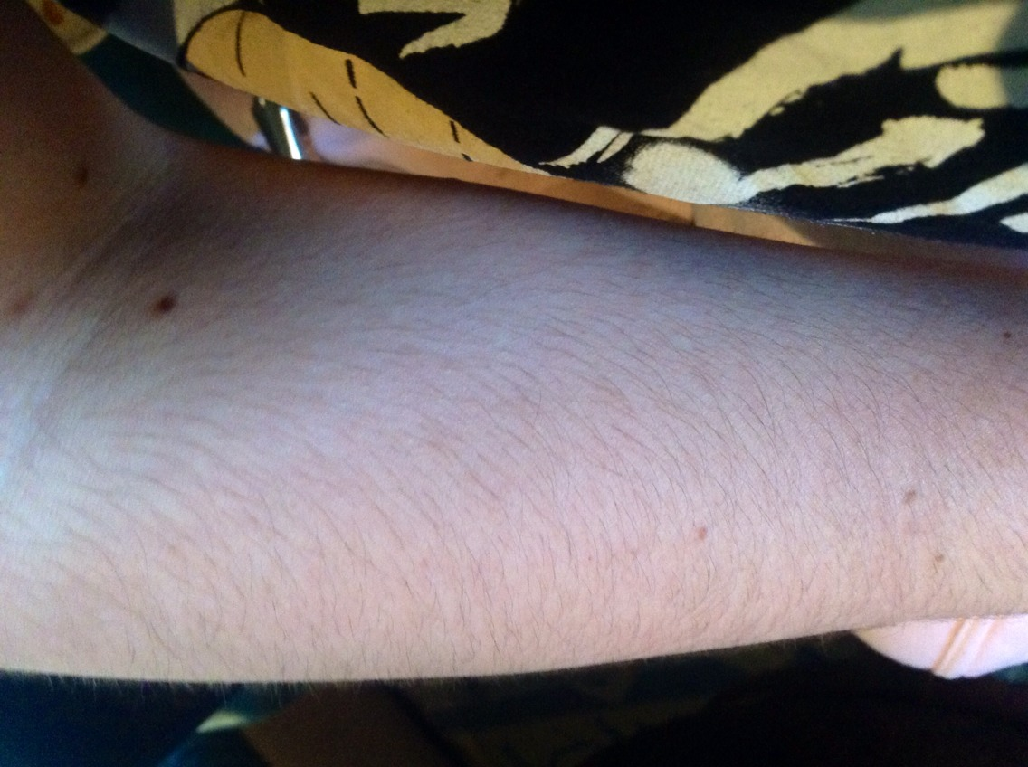 My arm before waxing