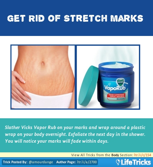 Best Deal Stretch Marks