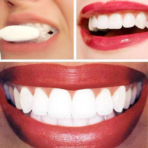 Dip a Qtip or toothbrush into the lemon juice and baking soda solution and apply it to your teeth.  Let the lemon and baking soda solution sit on your teeth for around a one minute. Brush your teeth with your regular toothpaste to remove the acid. Resulting with whiter teeth in first treatment!