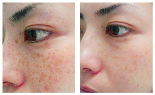 How to get rid of brown spots on the face