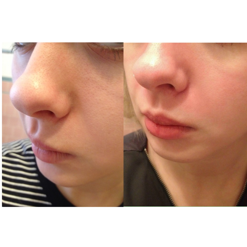 This HD picture shows my skin before (left) and after (right) this treatment! This is an amazing way to rid your face of blackheads.