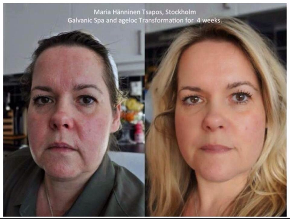 You may think this is mother and daughter.... You would be wrong. This is ident is twins one of which is a month into an external anti-ageing skin care regime!!