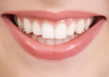 The main ingredient in whitening strips are baking soda and peroxide. Pour some peroxide into the bottles cap and mix with a pinch of baking soda. It'll give you the same results for a better price. (You can also add lemon juice but it will weaken your enamel