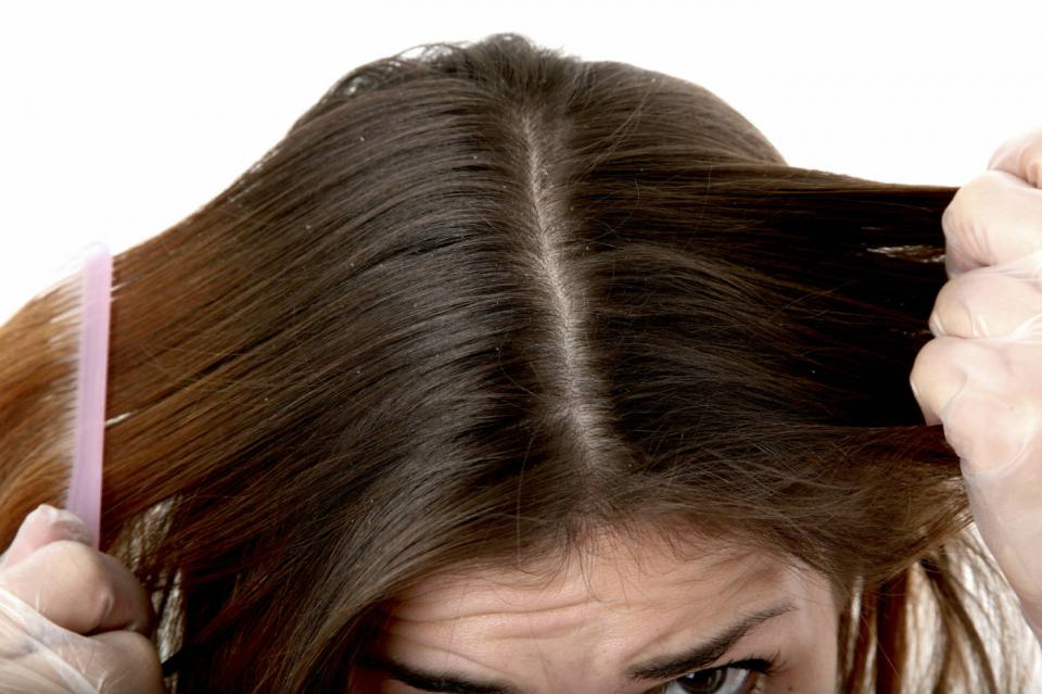 dandruff, use vinegar after shampooing to control it. Rinse with a solution of 1/2 cup vinegar and 2 cups of warm water each time you shampoo your hair. Once you notice that the dandruff has cleared up, reduce to once or twice a week