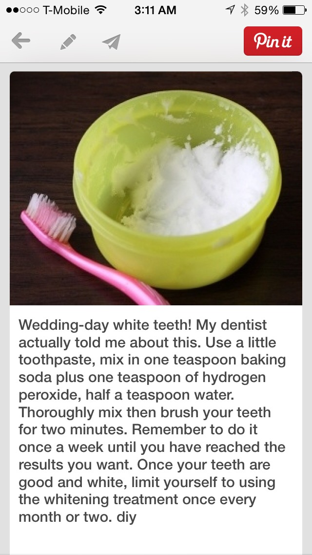 Make Your Teeth Whiter At Home I Used It On Myself Teeth Started To