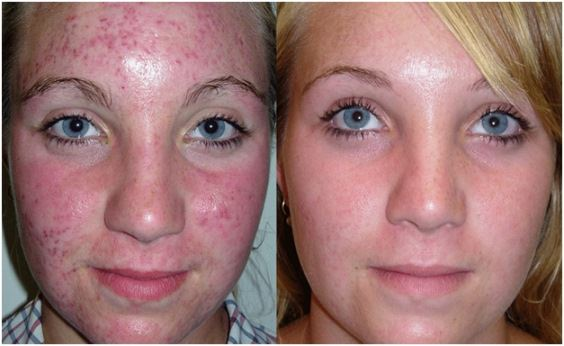 Enjoy your clear skin within a week!