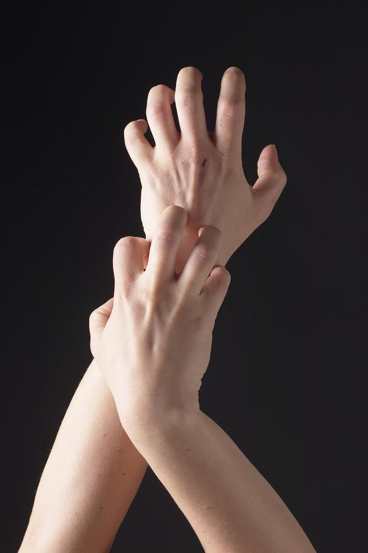 While having itchy skin apply pressure to the affected area, the reduce in blood flow will stop it from being irritated