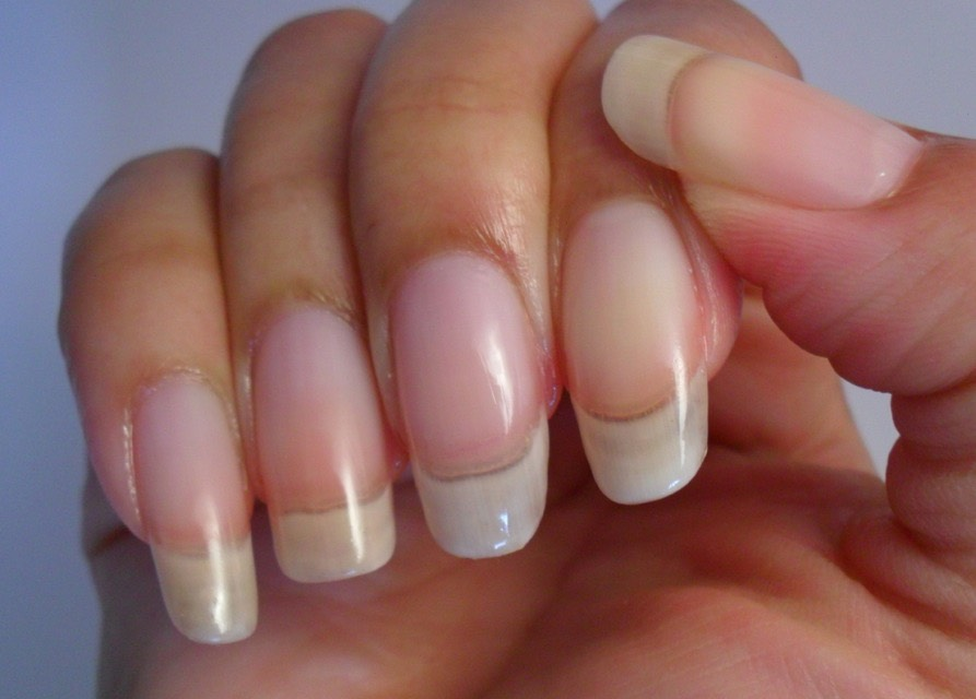And your nails will grow very quickly and thick, they should look like this after 2-3 weeks