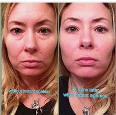 WOW.  What a transformation.  INSTANTLY AGELESS  Revives skin Plumps skin Minimises fine lines and pores Treats dark circles and puffiness under eyes Works in 1-2 minutes Lasts 10 hours Gives a flawless finish