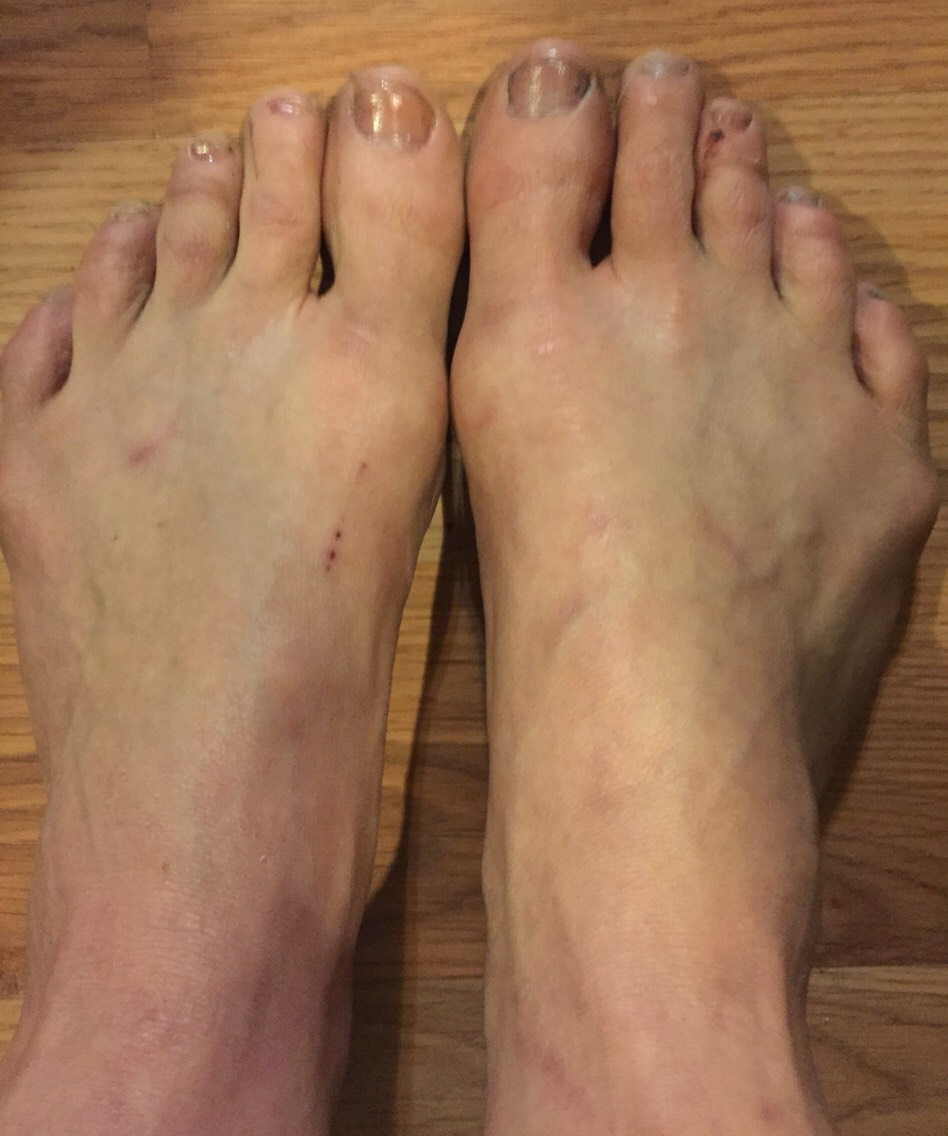 Now this is a week later. I realize I will never be a foot model but this was a vast improvement from the nightmare you saw before, right?