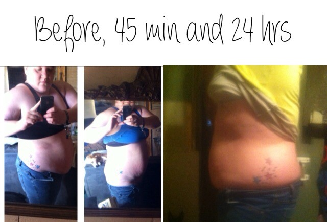 My personal results! The great thing one wrap works for 72 hrs!!!
