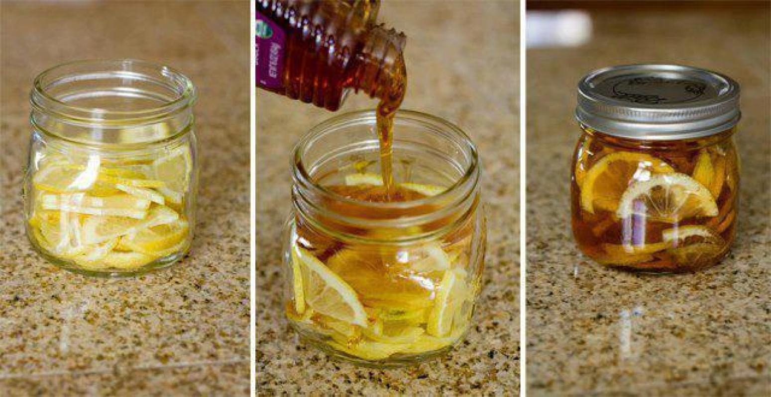 In a jar combine lemon slices, organic honey and sliced ginger. Close jar and put it in the fridge, it will form into a jelly.▶️▶️▶️