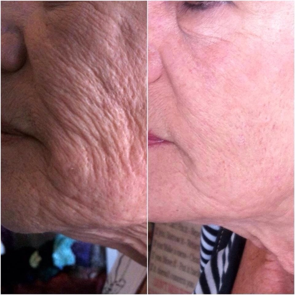 Why have wrinkles when you don't have to?!!! USE NERIUM!!!!