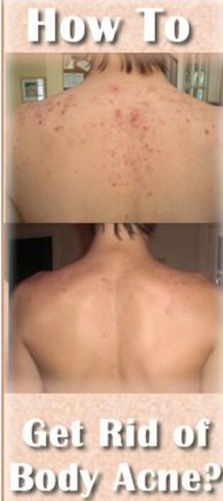 Body Acne Treatments - Page 2 - AskMen