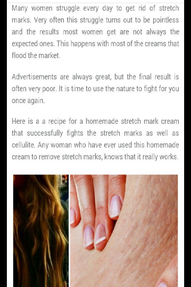 Diy Stretch Marks Cream By Nadeen Morales Musely