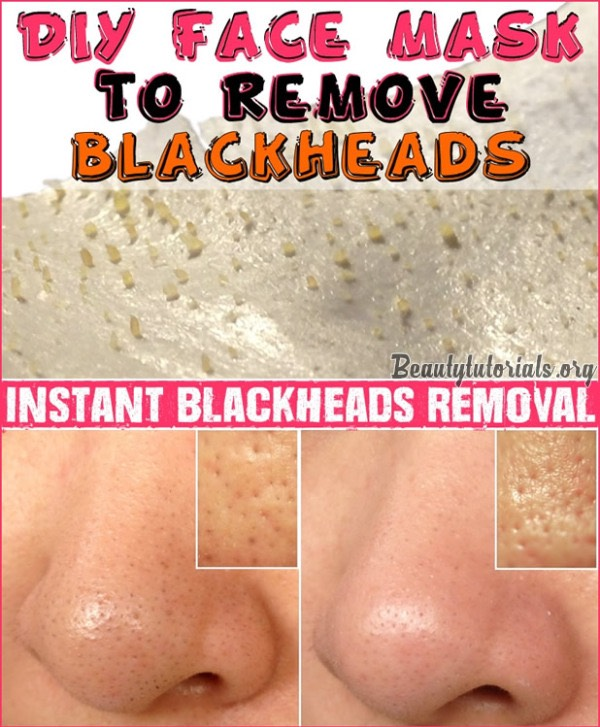 Instant Blackheads Removal by 💗Nunita Nice💗 - Musely