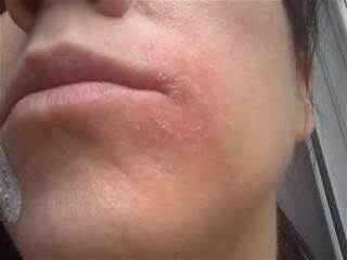 Eczema: apply to effected area for 20 minutes. Honey'a calming properties sooth the skin