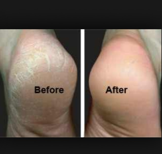 And the dead skin will peel right off and there u have it smooth feet