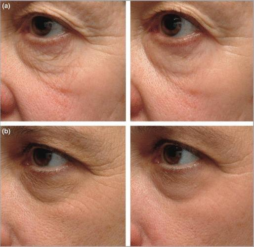 Source: A randomized, controlled comparative study of the wrinkle reduction benefits of a cosmetic niacinamide/peptide/retinyl propionate product regimen vs. a prescription 0.02% tretinoin product regimen (The British Journal of Dermatology - Mar, 2010)    Fiction: If your skin gets irritated, you should stop using tretinoin immediately Fact: It's important to be patient with any irritation you have when starting your tretinoin journey. A little bit of skin irritation is all part of the process, so you don't worry if your skin becomes slightly dry, flaky, or red when you first introduce tretinoin into your skincare routine. However, if your skin is really uncomfortable and super-dry, speak to your dermatologist about switching to a weaker, less concentrated tretinoin dosage. Pain is never a good thing.  Fiction: You don't need to use tretinoin until you have wrinkles Fact: Dermatologists actually recommend adding an active ingredient such as tretinoin into your skincare routine once you hit 30 to prevent the visible signs of aging. Plus, even if you don't have wrinkles yet, tretinoin will help reduce the sun damage you may have gotten over the years and will prevent wrinkles and dark spots.  Fiction: Tretinoin will make your rosacea worse Fact: It's not a good idea to use tretinoin in the midst of a rosacea outbreak. Otherwise, however, you shouldn't have any additional redness after the first couple weeks of use. And, in fact, studies have found that tretinoin might even be a treatment for rosacea.