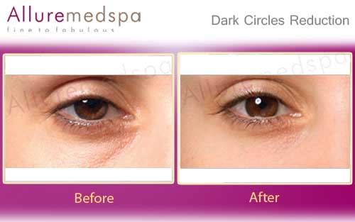 A few simple and easy ways to reduce the presence of dark circles!