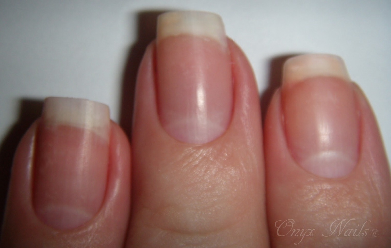 Good for nails. Helps them grow faster and thicker.