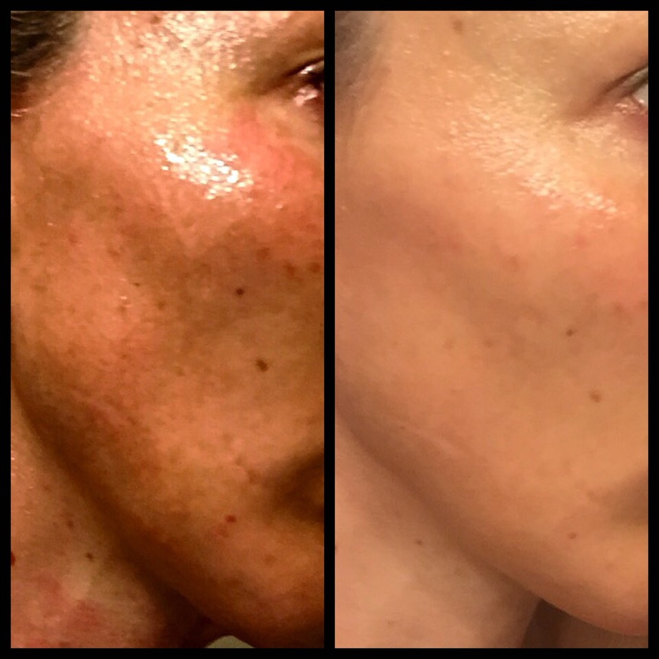Pictured here on the left is my face before using LAFACE C-cell regeneration serum, and on the right is my face after three weeks of using LAFACE C-Cell Regeneration Serum. Needless-to-say I am a true believer. I realize the product is pricey but, as they say you get what you pay for.