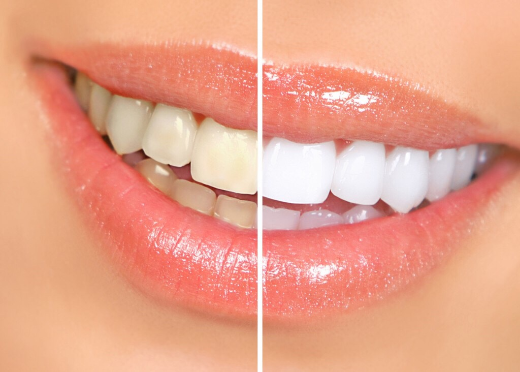 Clean your teeth! White teeth are much more appealing than slightly yellow ones ✌️
