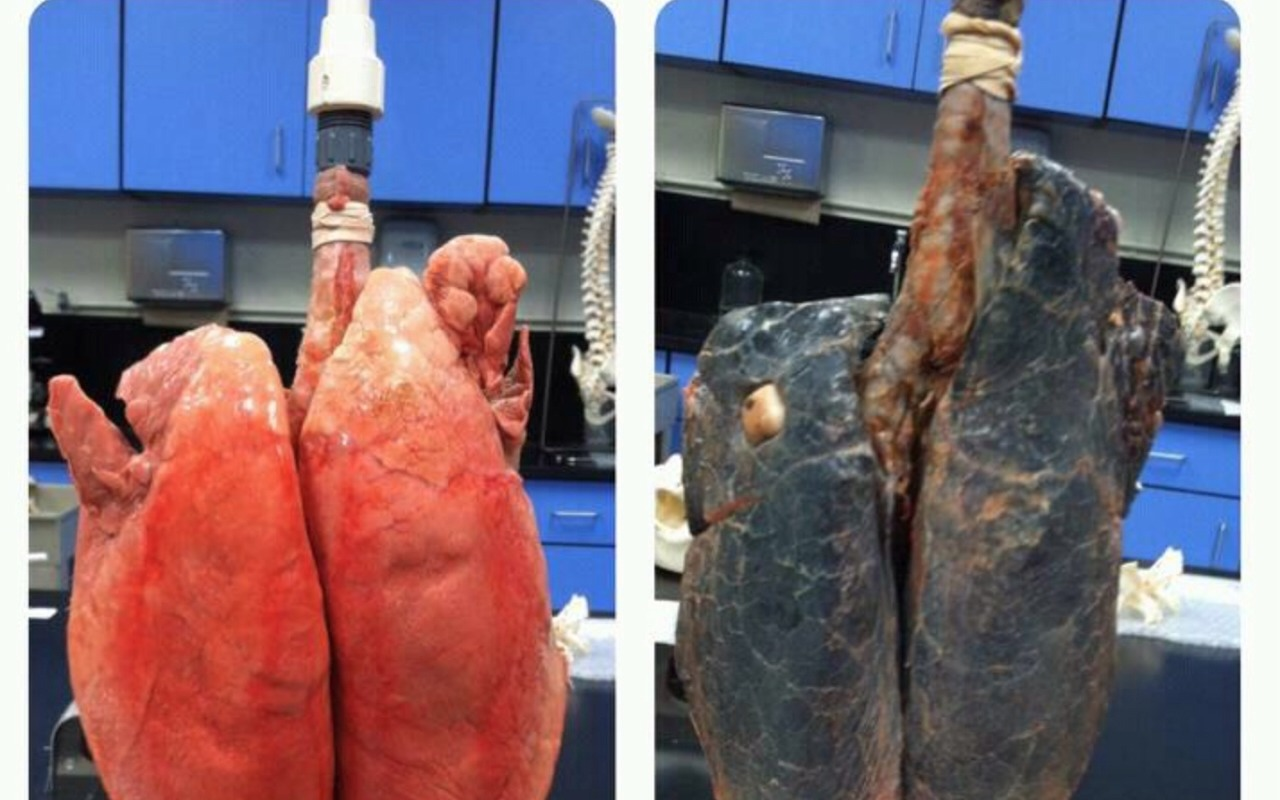 One the right are a non smokers lungs, which are more brighter and more inflated which means that it will be much easier to breathe. On the left are a smokers lungs, hardly able to let oxygen in as they aren't inflating properly and they are black!