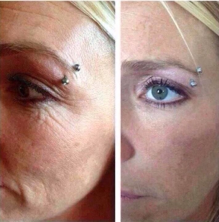 No one likes crows feet!