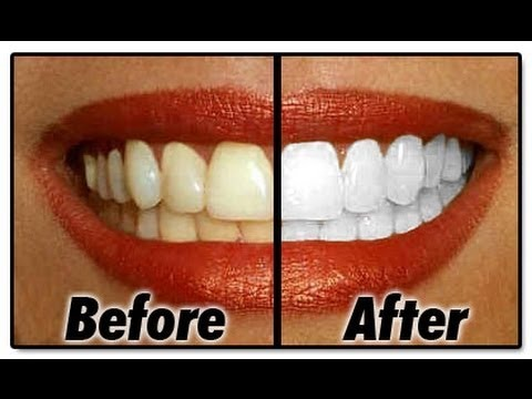 VWALA! Your teeth are pearly white!  WARNING: DO NOT DO IT EVERYDAY OR TO OFTEN OR YOU WILL DAMAGE YOUR TEETH