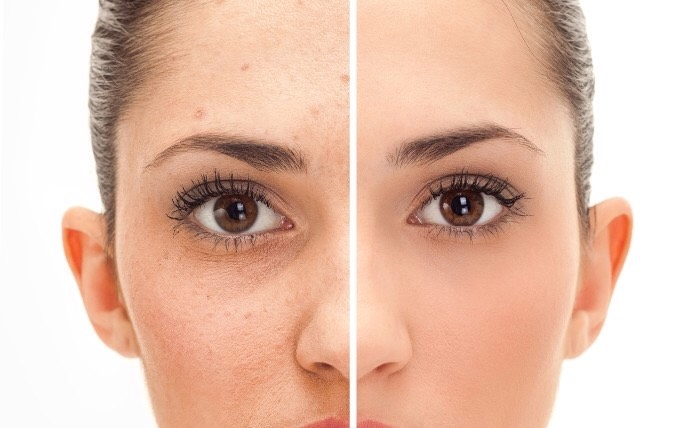 How to get rid of pimples fast and overnight