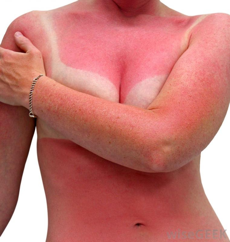 sun poisoning Reader: i got a bad sun burn and now it's painful how can i tell if it's just a regular sunburn or.