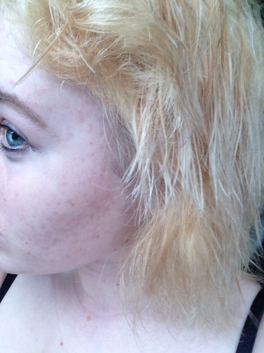I believe you can see a visible difference after having the toner on for 1 hour. I'm going to put some more toner on for another hour and see the difference