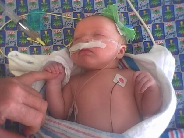 At 3wks old she stopped breathing and I rushed her to the ER. They said it was bronchilitis and placed her on a breathing machine and steroids.