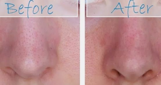 REMOVE BLACKHEADS WITH HOMEMADE NOSE