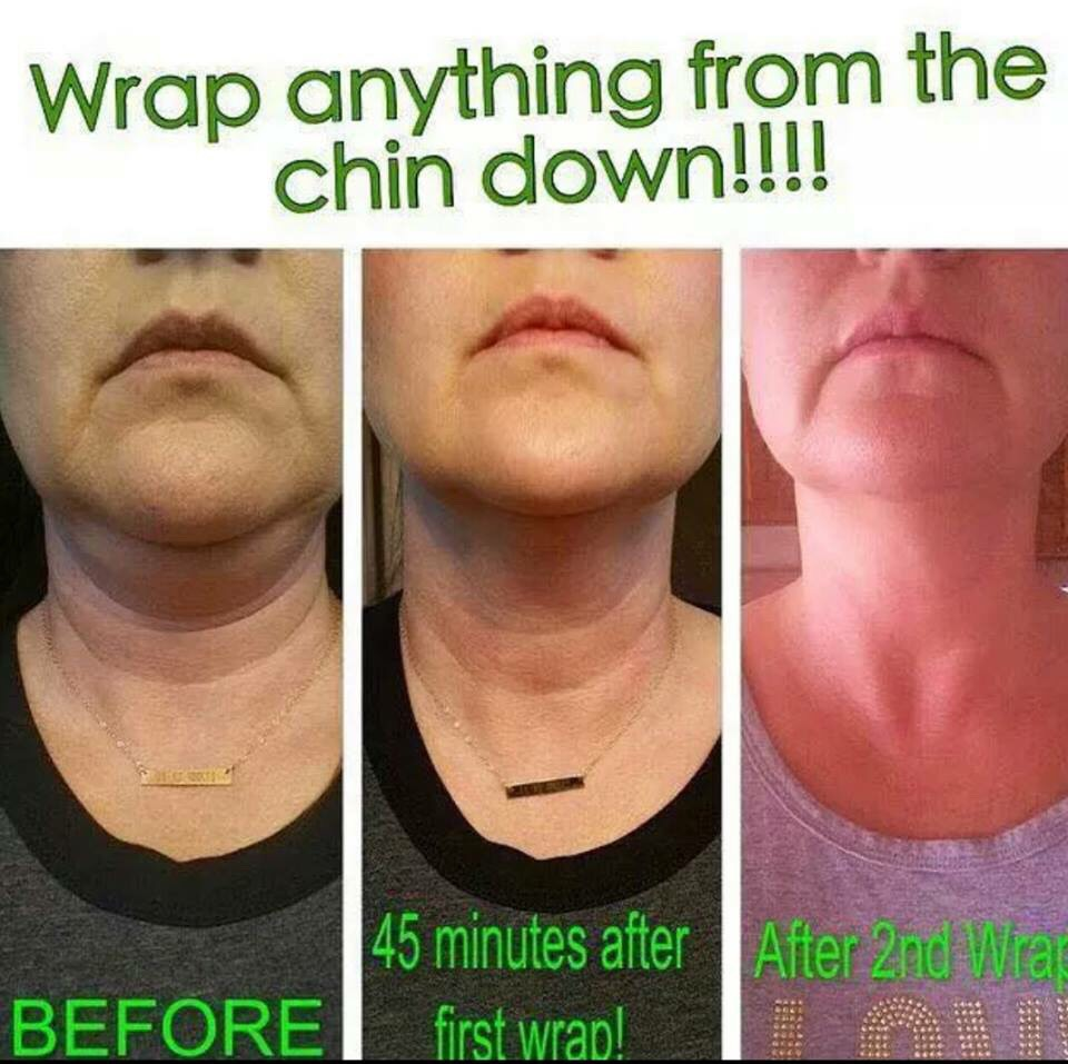 Get rid of the wrinkly and loose skin on the neck with wraps!