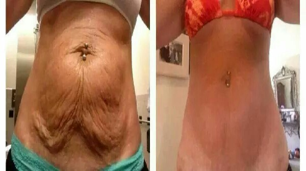 NeriumFirm used twice daily gives amazing results