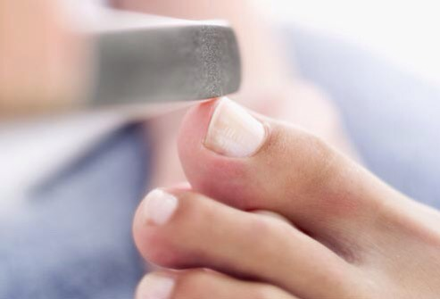 File the nails  Use the filing surface of a buffing block to round sharp edges from trimming. This also helps prevent ingrown toenails. Be sure to file in only one direction