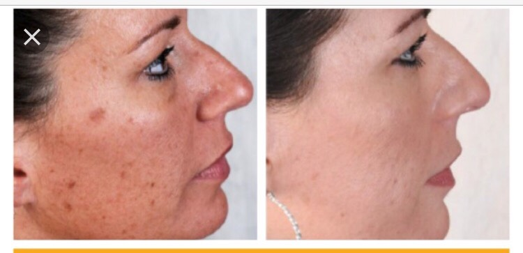 No more dark spots or uneven skin tone
