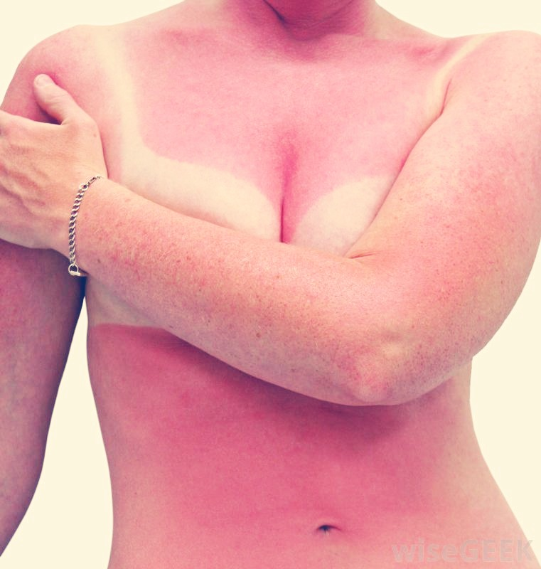 A sun burn is always painful  When you try to rub aloe on your burn It ends up feeling sticky and hot and and don't forget painful!